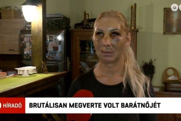 A bántalmazott nő szerdán az ATV híradójának nyilatkozott